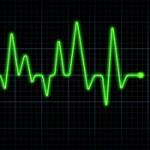 Elettrocardiogramma-foto-per-servizi-a-domicilio-150x150