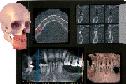 TC - Radiologia 3D Cone Beam Ortopanoramica