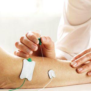 elettromiografia - esecuzione dell'esame con l'ago